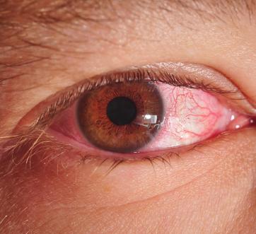 Antibiotics & Cataract Surgery: New Frontiers