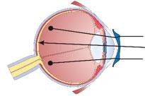 myopia-left