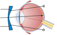 myopia-right