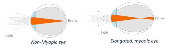 a diagram of the eye showing the difference between normal and myopic vision